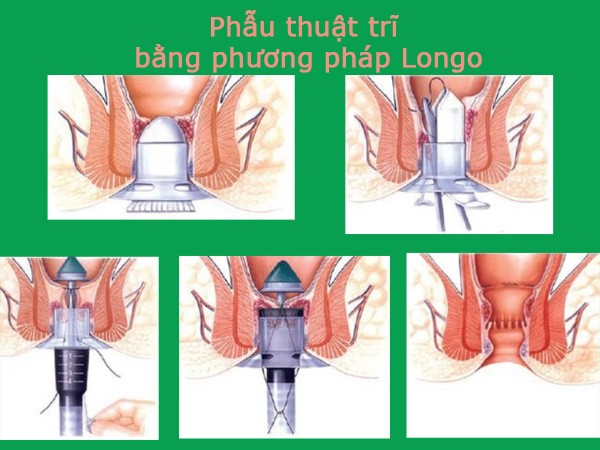 Hình ảnh phẫu thuật Longo trong điều trị trĩ nội